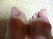 私の足1(旅館で2回入浴後)