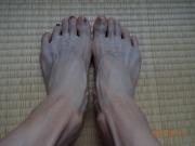 内出血した足指爪